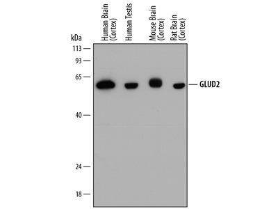 GLUD1 / GLUD2 Antibody