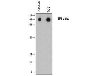 TMEM87A Antibody