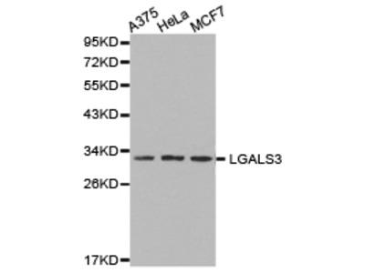 CCL25 / TECK Polyclonal Antibody
