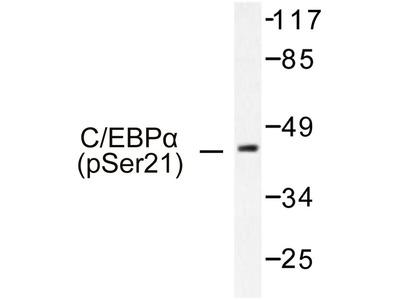 C/EBP Alpha / CEBPA Polyclonal Antibody