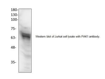 PAK1 Antibody