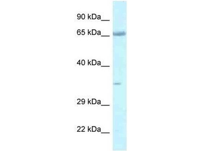 anti-LZTS1 (FEZ1) antibody