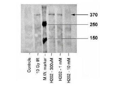 Phospho-ATM (Ser1981) Monoclonal Antibody (10H11.E12)