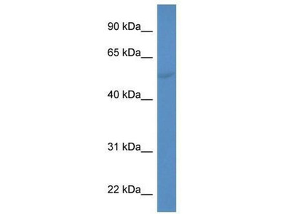 anti-Cytochrome P450, Family 2, Subfamily A, Polypeptide 6 (CYP2A6) antibody