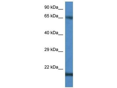 anti-Cancer/testis Antigen 1B (CTAG1B) antibody