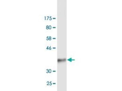 anti-Integrin, alpha 4 (Antigen CD49D, alpha 4 Subunit of VLA-4 Receptor) (ITGA4) (AA 98-207), (partial) antibody