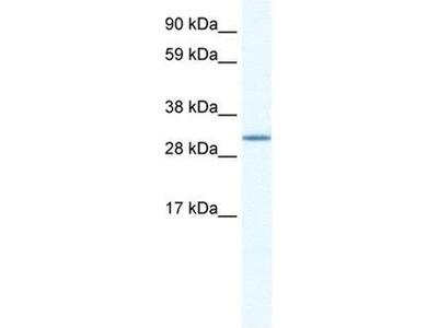 anti-Spi-C Transcription Factor (Spi-1/PU.1 Related) (SPIC) antibody