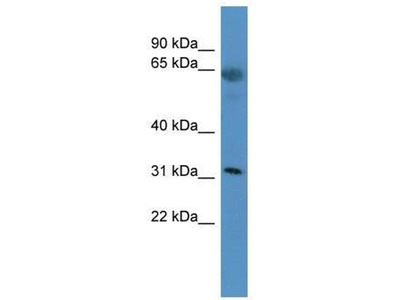 anti-OR2T29 antibody