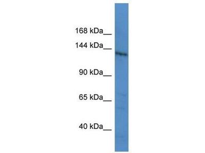anti-LTBP1 antibody