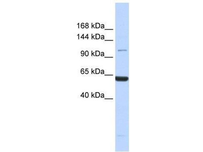 anti-XIRP2 antibody