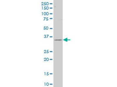 anti-CAPZA2 antibody
