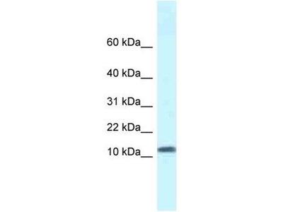 anti-SSBP1 (SSB) antibody