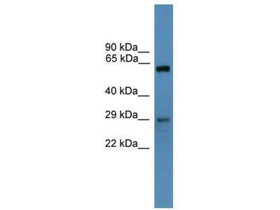 anti-TP53RK antibody