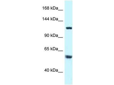 anti-Tubulin Folding Cofactor D (TBCD) antibody