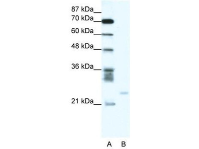 anti-BCL2A1 (BCL2-related protein A1) antibody