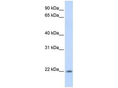 anti-ATRAID antibody