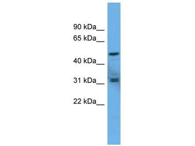 anti-Adenylate Cyclase Activating Polypeptide 1 (Pituitary) Receptor Type I (ADCYAP1R1) (C-Term) antibody