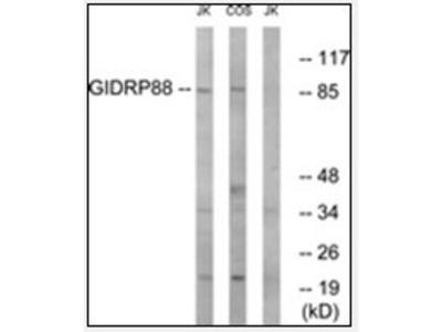 anti-R3HCC1L (C10orf28) antibody