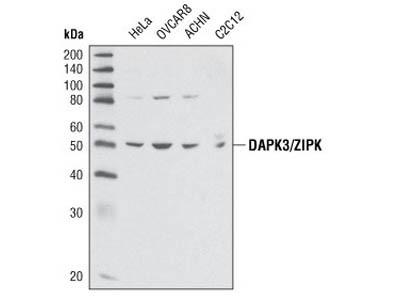 DAPK3/ZIPK Antibody