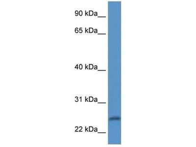 anti-Peptidase Inhibitor 15 (PI15) antibody