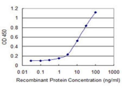 anti-CELA3B (ELA3B) antibody