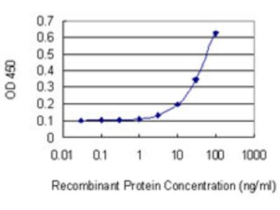 anti-XRCC3 antibody