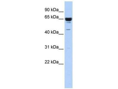 anti-Zinc Finger Protein 587 (ZNF587) antibody