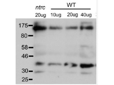 Anti- PRK ribulose-5-P-kinase ; Phosphoribulokinase
