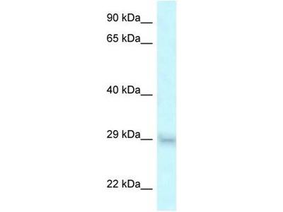 anti-SRA1 antibody