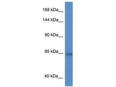 anti-Zinc Finger Protein 780A (ZNF780A) antibody
