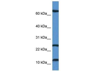 anti-TARP antibody