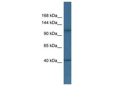 anti-HK1 (Hexokinase 1) antibody