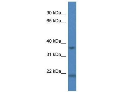 anti-Cathepsin K (CTSO) antibody