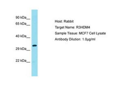 anti-R3HDM4 antibody
