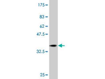 anti-RAB31 antibody