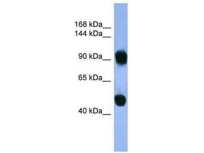 anti-AP1B1 antibody