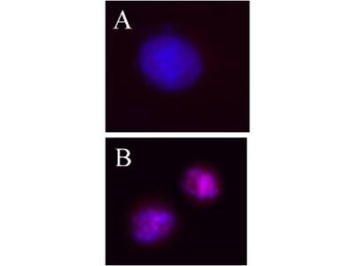 AURKB / Aurora-B Antibody