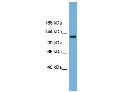 anti-Ras Protein-Specific Guanine Nucleotide-Releasing Factor 1 (RASGRF1) antibody