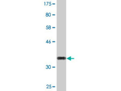 anti-XAGE2 antibody