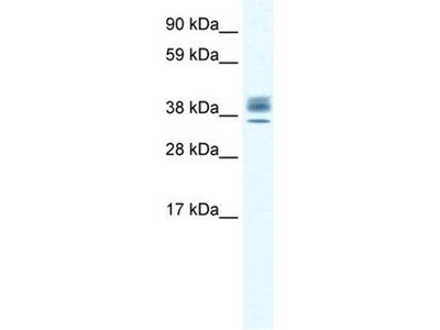 anti-ESX Homeobox 1 (ESX1) antibody