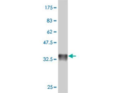 anti-RAB19 antibody