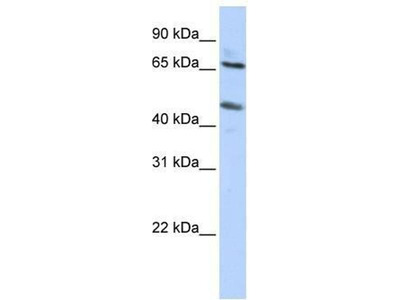 anti-Solute Carrier Family 26 (Sulfate Transporter), Member 10 (SLC26A10) antibody