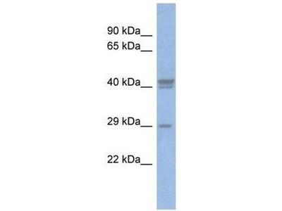anti-CEBPD antibody