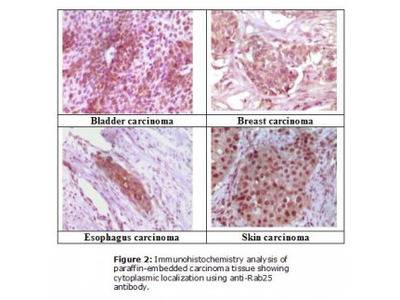 RAB25 Monoclonal Antibody