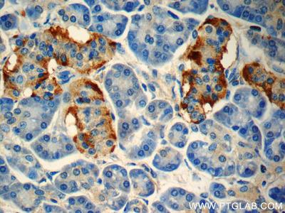 peptide YY Polyclonal Antibody