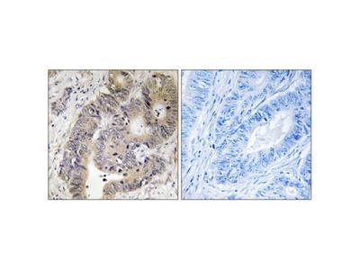 CAD (Phospho-Thr456) Antibody