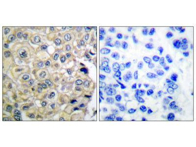 Fibroblast Growth Factor Receptor 3 (FGFR3) Antibody