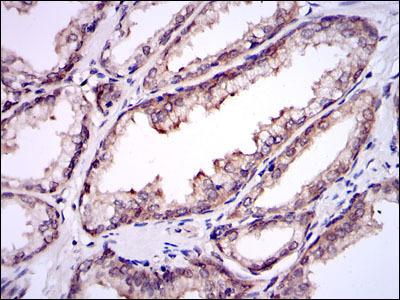 SUMO-Conjugating Enzyme UBC9 (UBE2I) Antibody