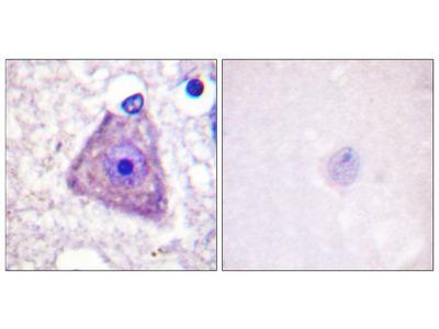 Ras-GRF1 (Phospho-Ser916) Antibody