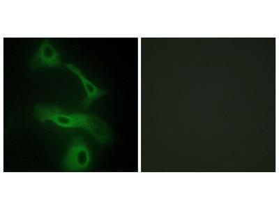 CLUS Antibody